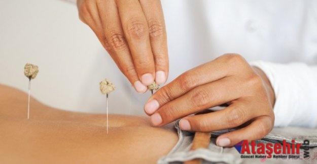 Akupunktur tek başına zayıflatmaz