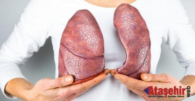 Öksürük, kilo kaybı ve ateş tüberküloz belirtisi olabilir