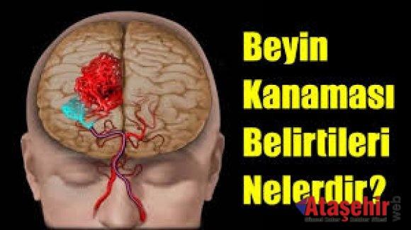 BEYİN KANAMASININ 10 BELİRTİSİNE DİKKAT!