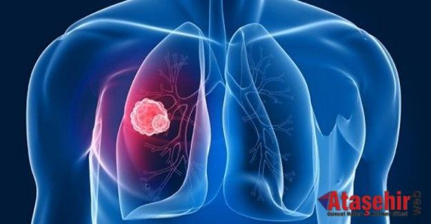Akciğer kanseri neden olur