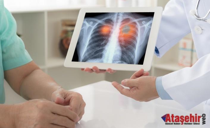 Amerikan Kanseri Derneği açıkladı; akciğer kanserinde tarama yaşı düştü