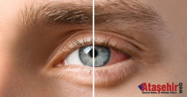 Diyabet hangi göz hastalıklarına yol açar?