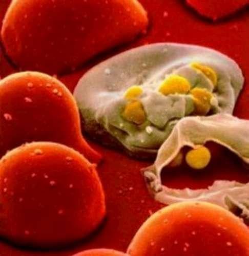 HIV virüsüne karşı jel
