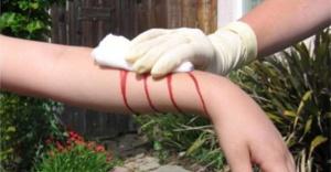 Bir dakikada kanı durduran jel geliştirildi