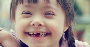 Diş Tedavisi Engel Tanımıyor!