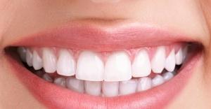 Sağlıklı diş eti gül kurusu rengindedir
