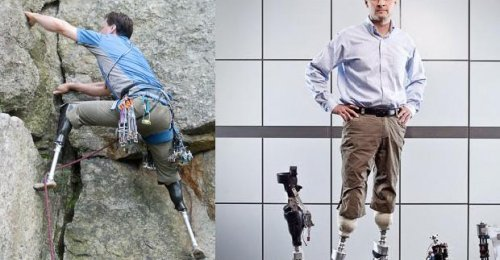 Biyonik Bacak Teknolojisinde Gelinen Son Nokta, New bionics let us run, climb and dance | Hugh Herr
