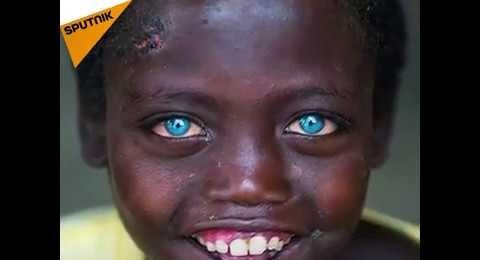 Evrenin bir mucizesi: Mavi gözlü Afrikalılar
