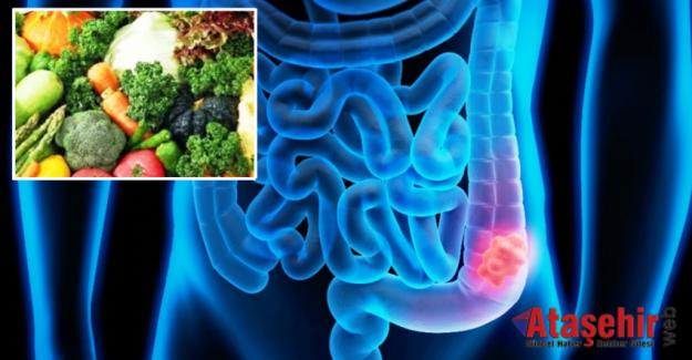 Kolon Kanserine Karşı 'Lifli Beslenme' Kalkanı