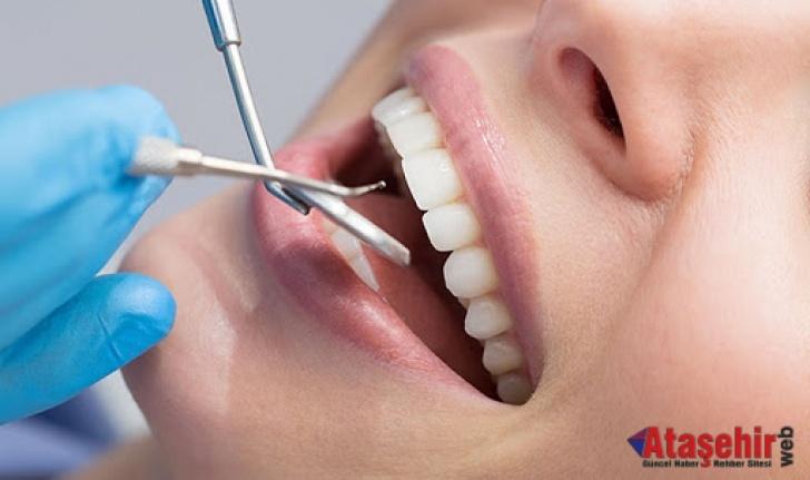 2021 Diş Dolgusu Fiyatları, Ataşehir Diş Dolgusu Yapan Yerler