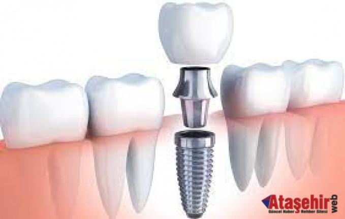 Diş İmplantları: Gülümseme Koruyucularınız