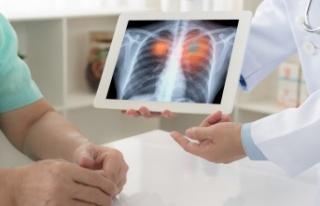 Amerikan Kanseri Derneği açıkladı; akciğer kanserinde...