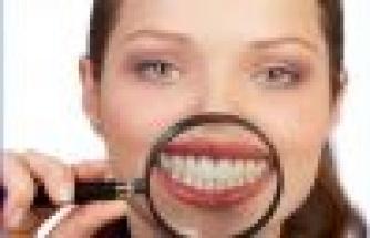 Dişleri Fazla Beyazlatmanın Zararları